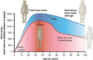 bone-loss-age-graph.jpg